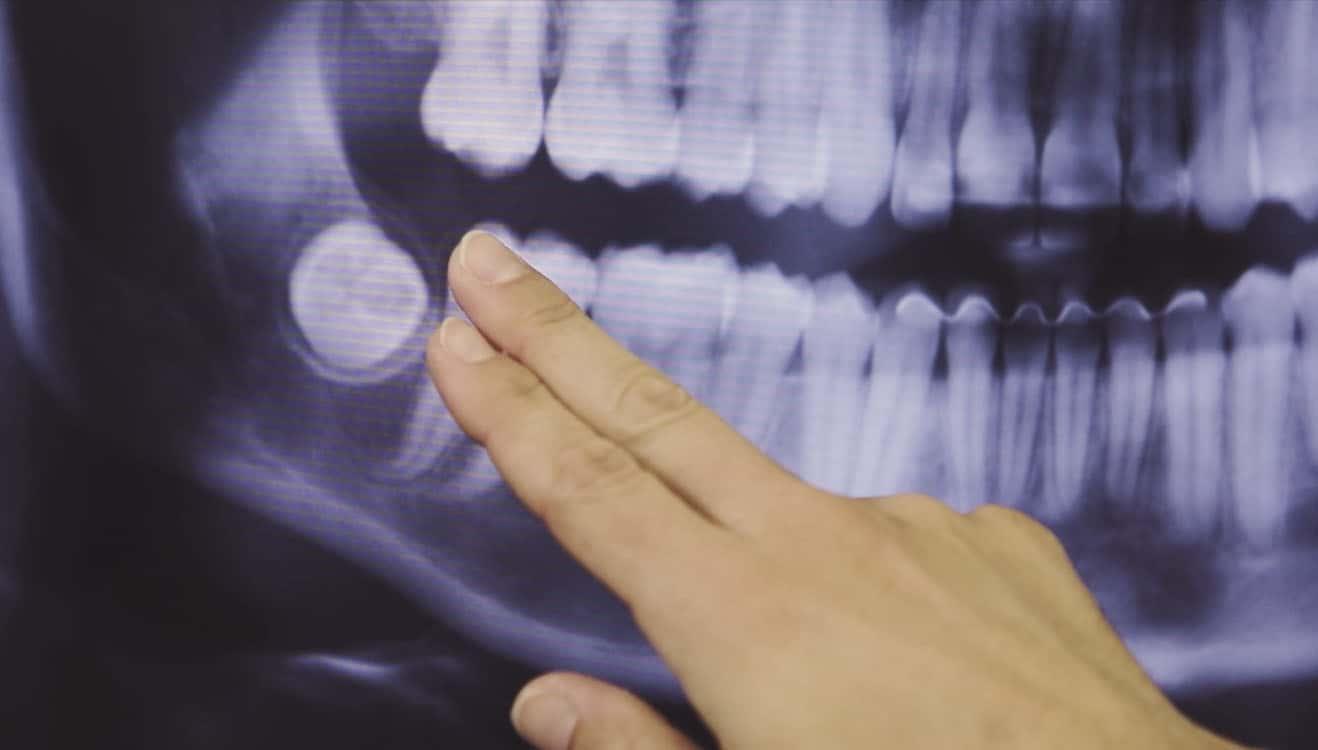 agnini-family-dental-lakeland-florida-branding-video-screenshot-15