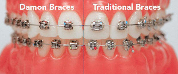 agnini-family-dental-lakeland-florida-damon-braces-cost